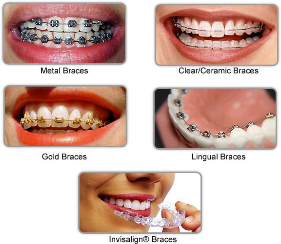 Offering Best Dental Braces Cost In Pune By Shivraj Patil Medium