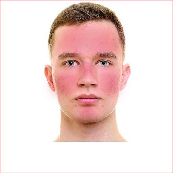 Rosacea? - Seyed Milad Sarvghad Moghaddam - Medium