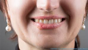 Can You Kiss Someone With a Cold Sore? - William Miller - Medium