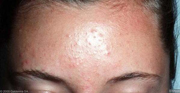 Are Those Bumps On Your Skin Fungal Acne By Nudie Glow Medium