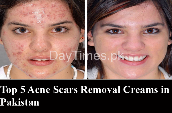 Top 5 Acne Scar Removal Creams An Ultimate Guide To Remove Acne Scars And Dark Spots By Sumera Saeed Medium