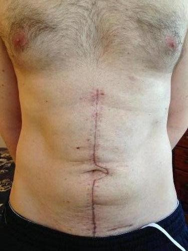 Scar, 4 weeks after surgery.