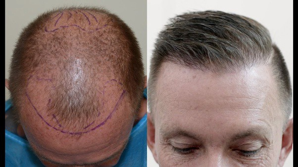 Can you have a hair transplant on your crown? | by Aleena Rose | Medium