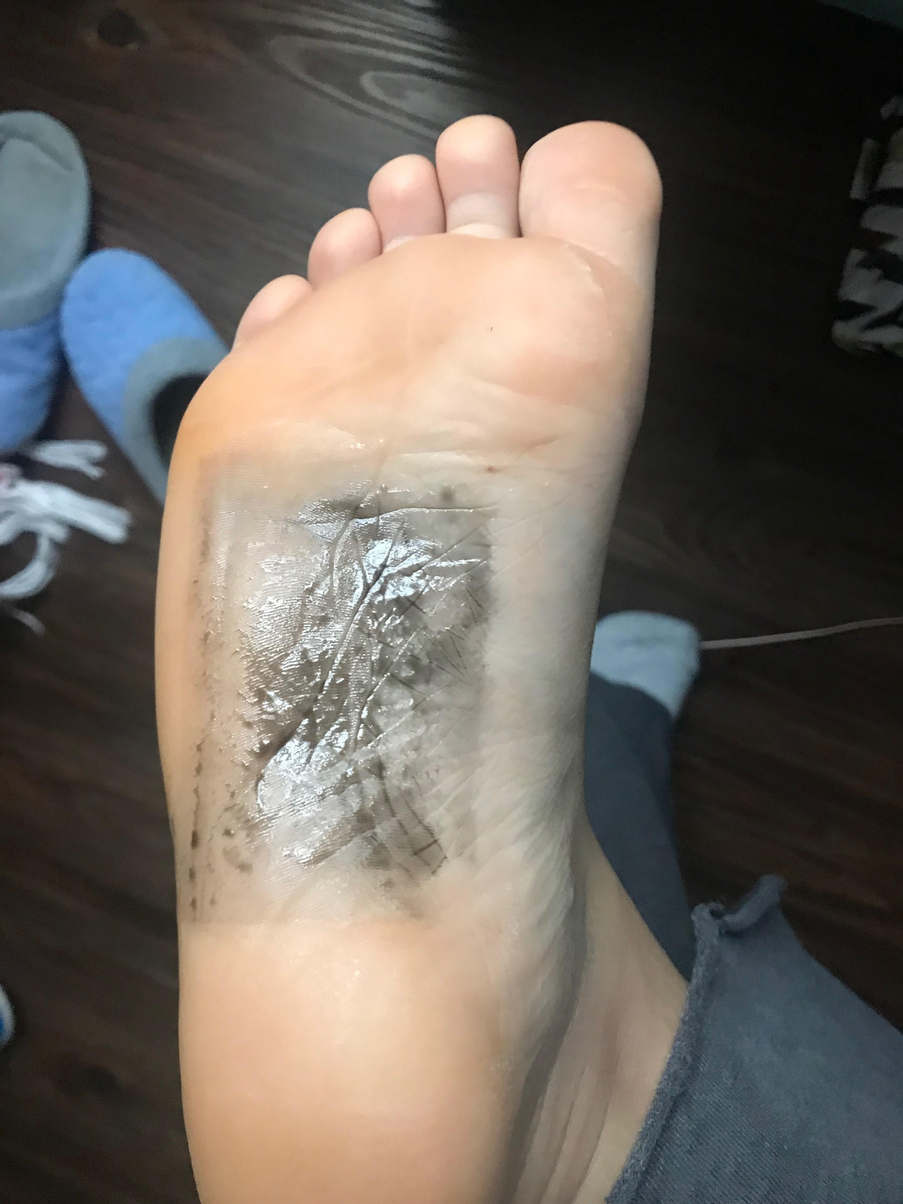 Detox Foot Pads A Dark Cleanse I Don T Consider Myself A Healthy By Shelby Clark Medium