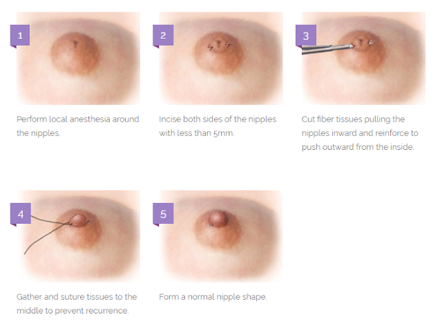 BREAST SURGERY — INVERTED NIPPLES BY VIEW PLASTIC SURGERY ...