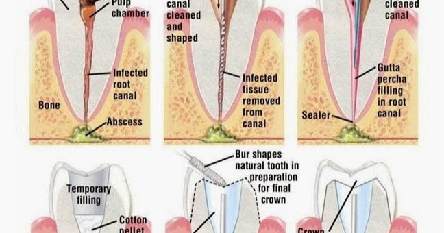 Why You Need Root Canal Treatment?