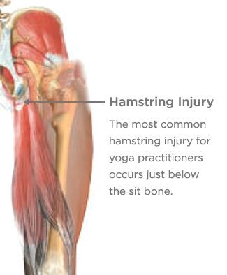 """Get Over """"Pain In the Butt"""" High Hamstring Tendonitis Pain"""