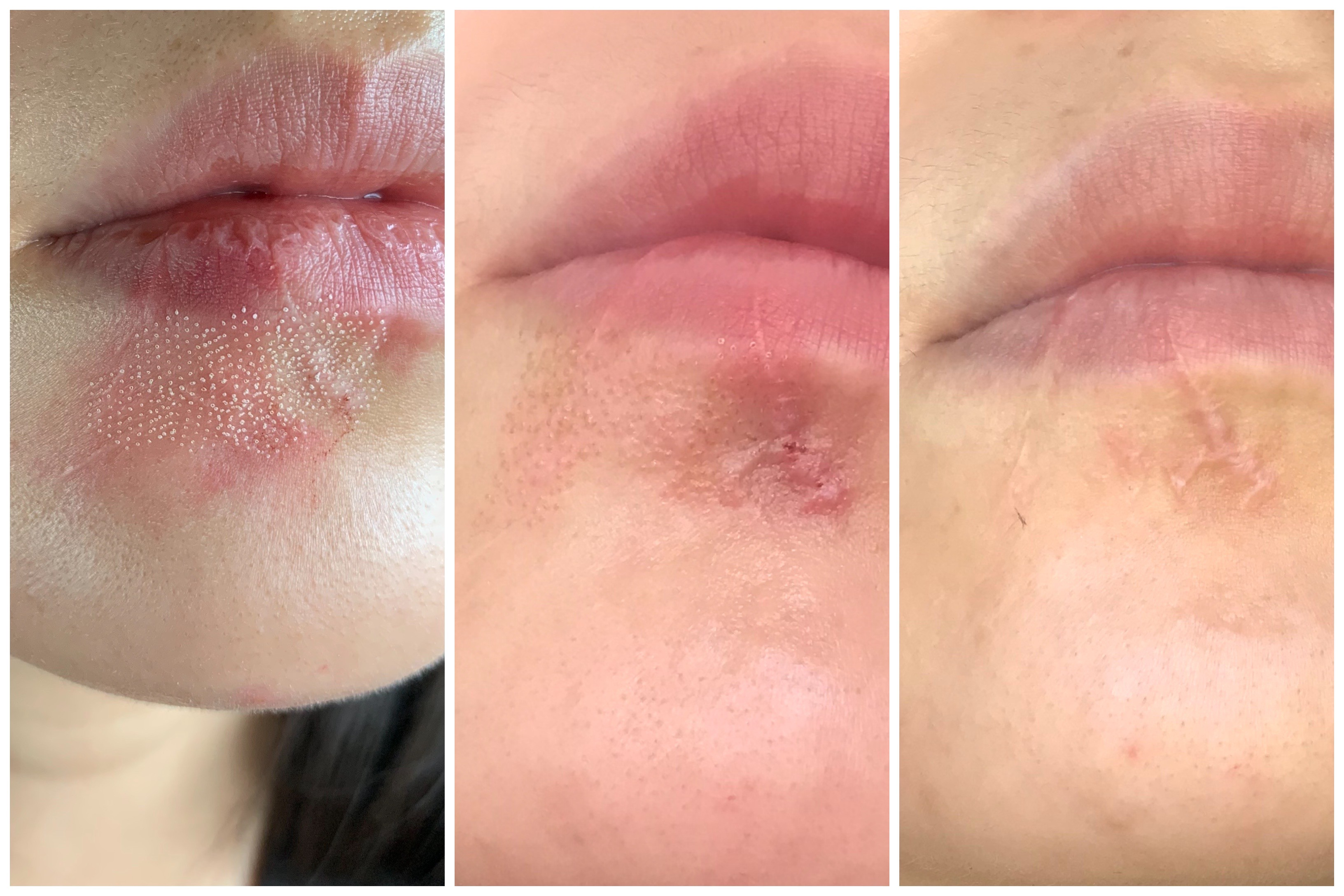A series of 3 images showing what my mouth scars looked like right after laser treatment, a few days later, then healed