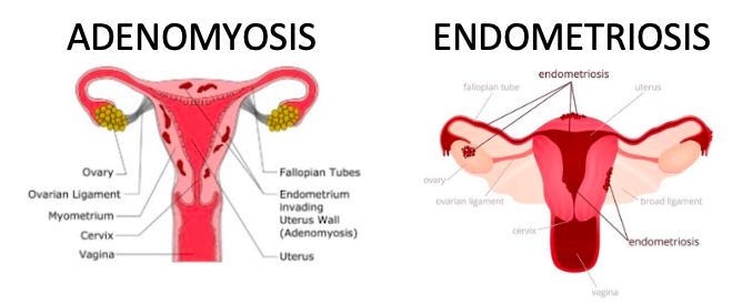Endométriose vs adénomyose - Vasundhara - Moyen
