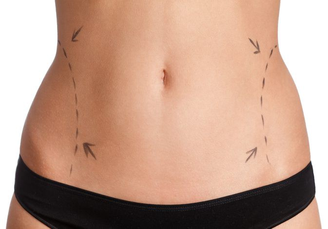 How To Tighten Skin After Liposuction By Denefits Medium