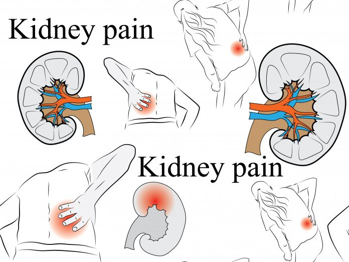 Where Your Kidneys Are Located And Where Kidney Pain Is Felt By Anna Levis Medium