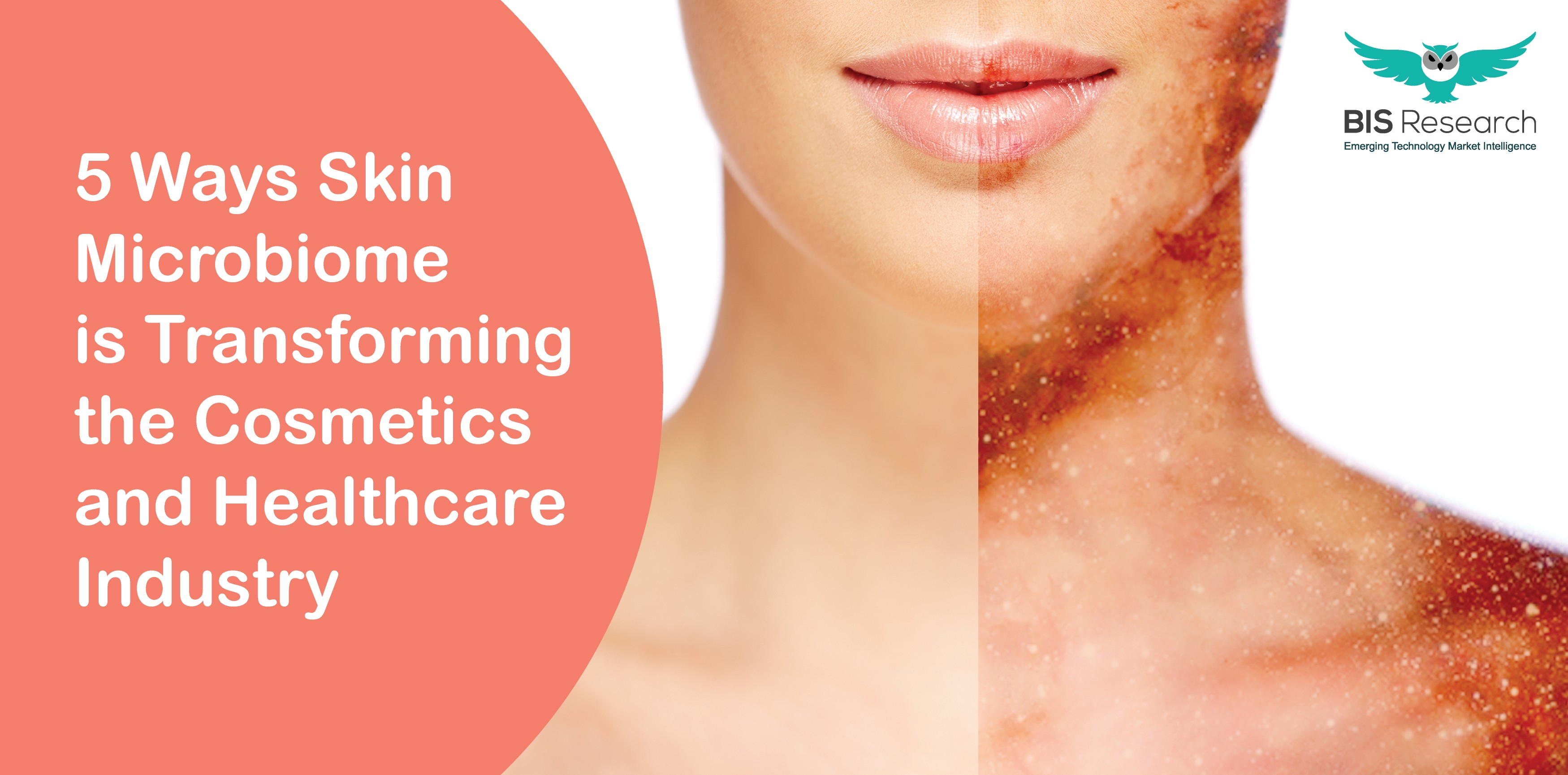 5 Ways Skin Microbiome is Transforming the Cosmetics and ...
