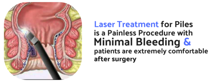Laser Treatment For Piles Painless And Effective By Liv Life