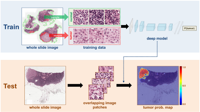 Understanding Cancer using Machine Learning