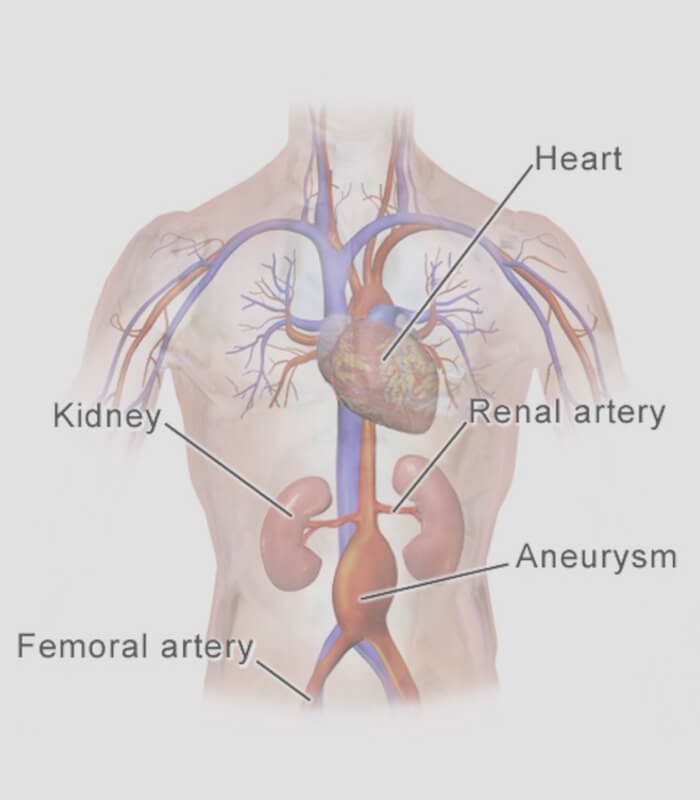 Six Things You Should Know About Ambulatory Phlebectomy