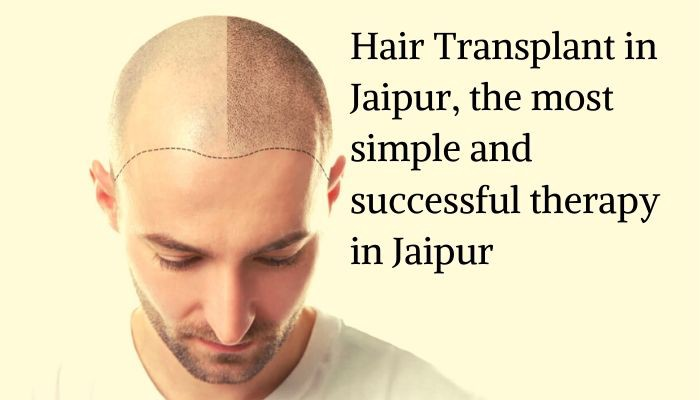Hair Transplant In Jaipur The Most Simple And Successful Therapy