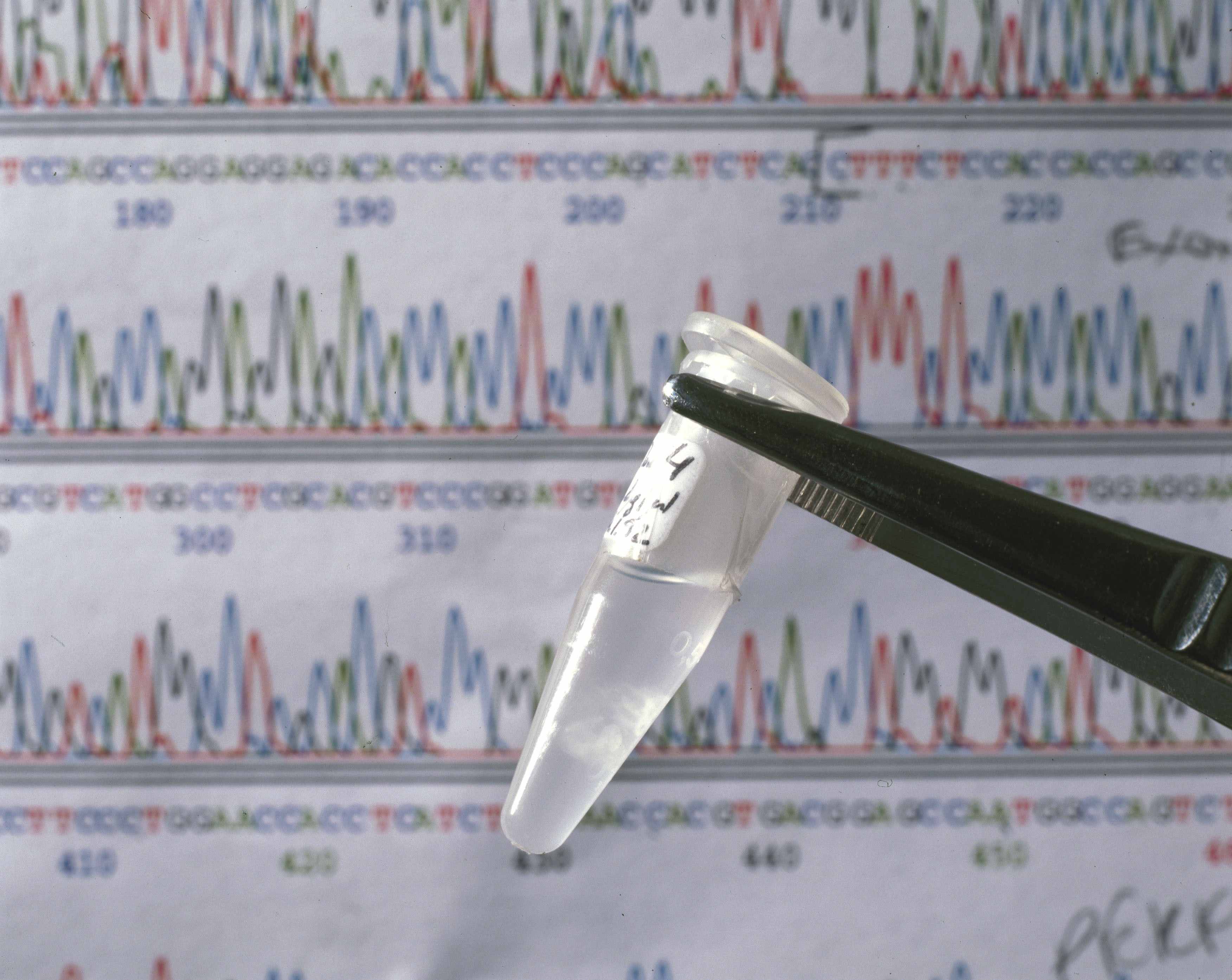 A sequencing chromatograph showing a DNA sequence and a sample of DNA from the human genome mapping project.