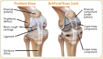 knee replacement surgery malaysia