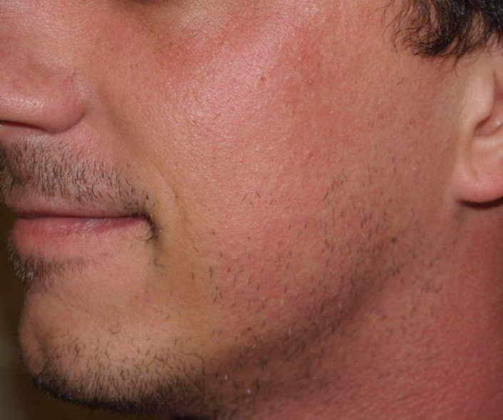 Facial Hair Transplant Is A Procedure Which Restores Hair To By Dr Naveed A Khan Medium