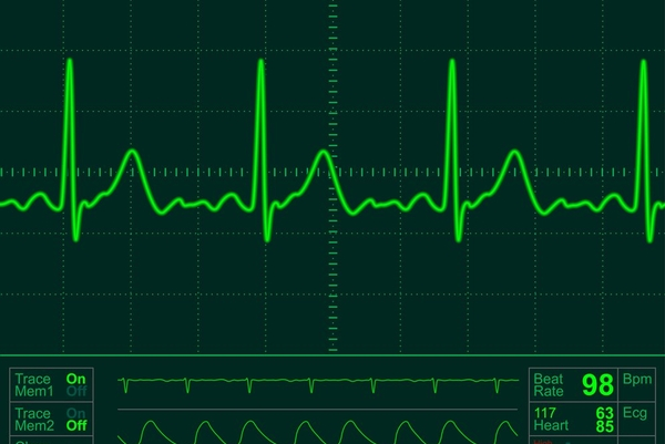 Your heart is a new biometrics - MAWI Band - Medium
