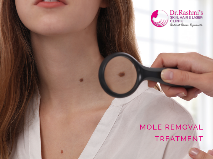 Recovery mole excision Recovery after