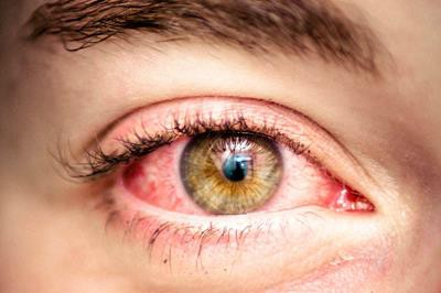 3e18dcc5063 Eyes On Brickell is one of the best emergency eye care centers for Red Eyes  Miami that accept all of the major insurances including EyeMed provider ...