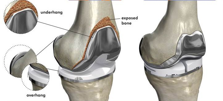 What is Knee Replacement Cost in India? - Medmonks - Medium