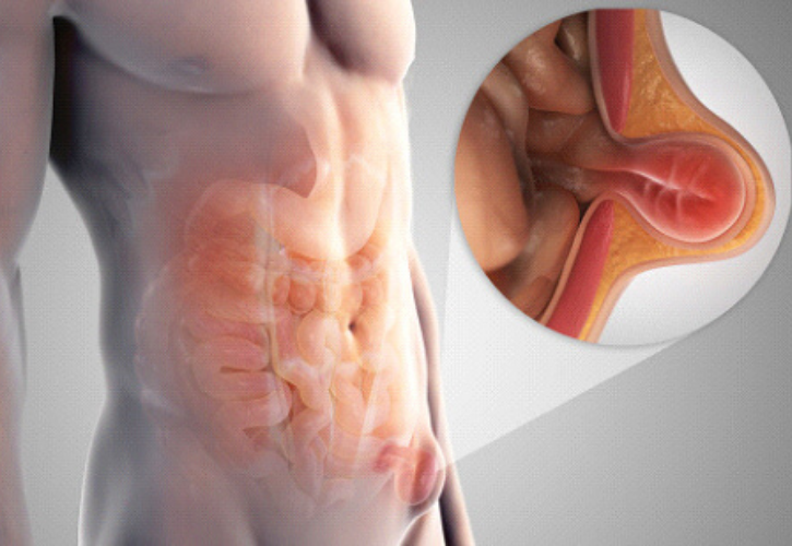 Is It Possible For Your Hernia To Go Away Without Surgery?