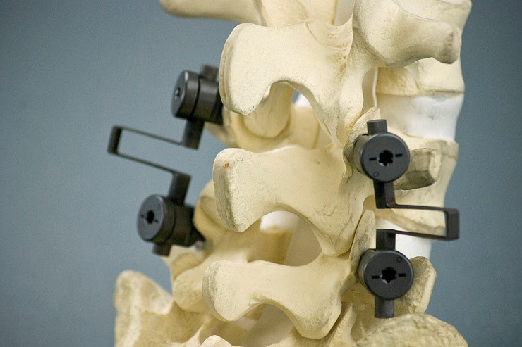 Spinal Fusion Devices Market CAGR To Be 5 1% By 2028