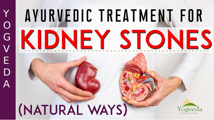 How To Cure Kidney Stone Naturally By Yogveda Medium