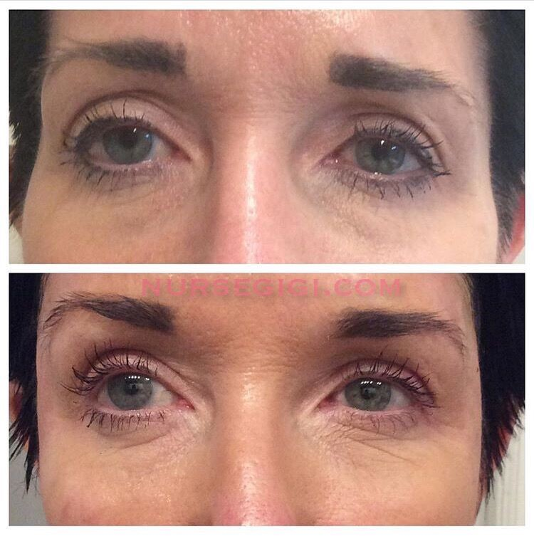 Lifting the Face by Filling the Sunken Temples with Sculptra