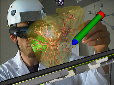 A surgeon planning a liver surgery with a tactile pointer.