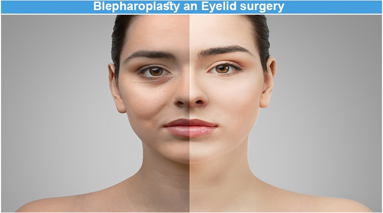 Blepharoplasty an Eyelid surgery. Blepharoplasty is a type of ...