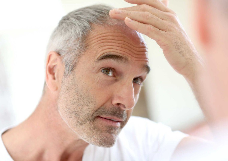Provillus Hair Loss Treatment Is Approved By The Fda