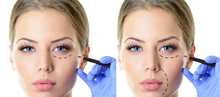 What is cosmetic surgery?. Corrective medical procedure is a part… | by  Haania rajpoot | Medium