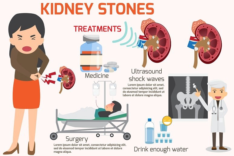 How Kidney Stone Treatment Can Help To Remove Stone From The Kidney By Dr Anshuman Agarwal Medium