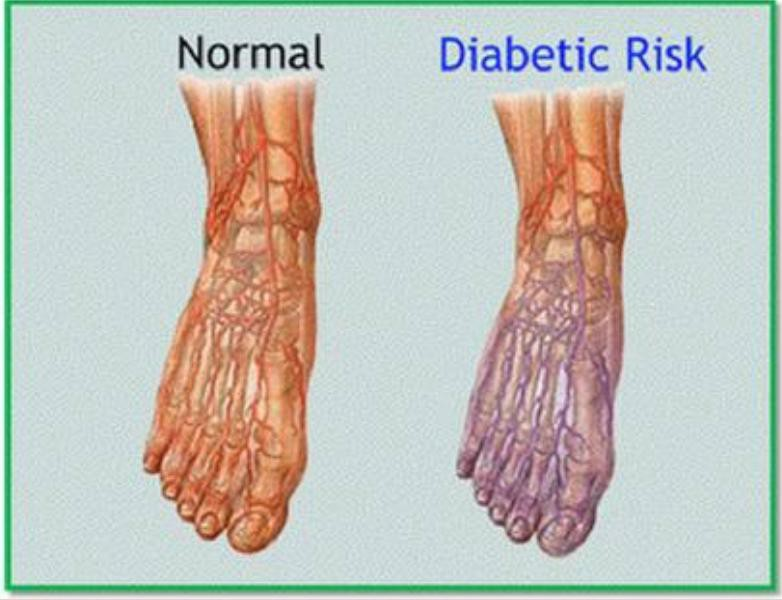 4 Major Foot Issues Caused By Diabetes By Dr Brinsley Medium