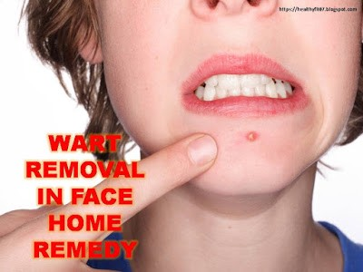 wart removal on face