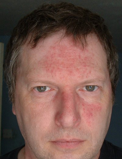 Rosacea - Dirk Bruere - Medium