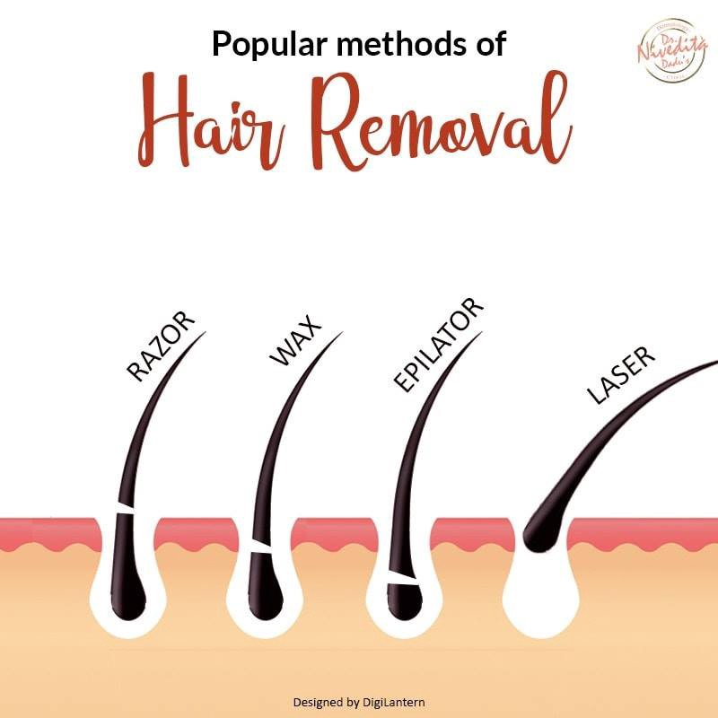 An Apt Solution For Hirsutism Laser Hair Removal By Full Body