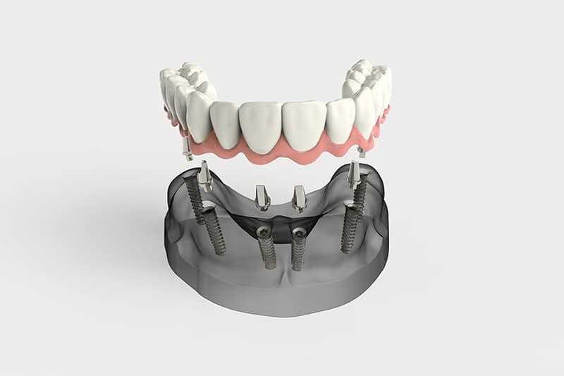 Everything You Have To Know About the All on 4 Dental Implant Cost