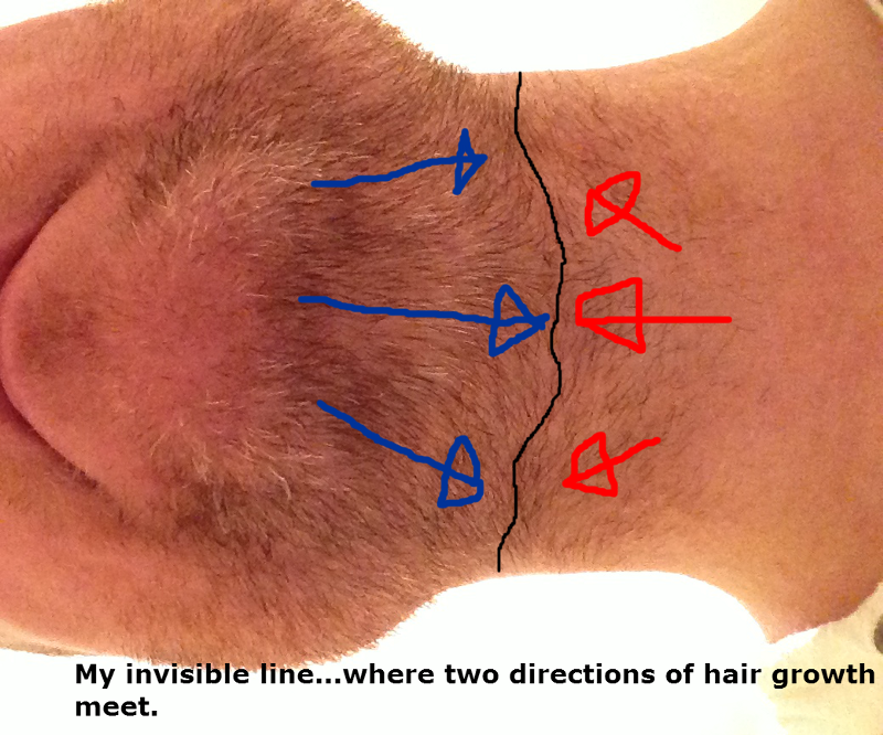 The ONE Secret You MUST Know For Beating Ingrown Hairs Once and ...