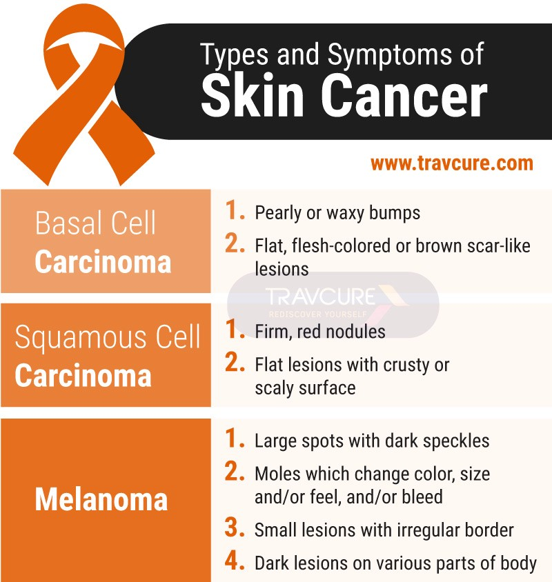 Early Warning Signs And Symptoms Of Skin Cancer By Travcure Medium