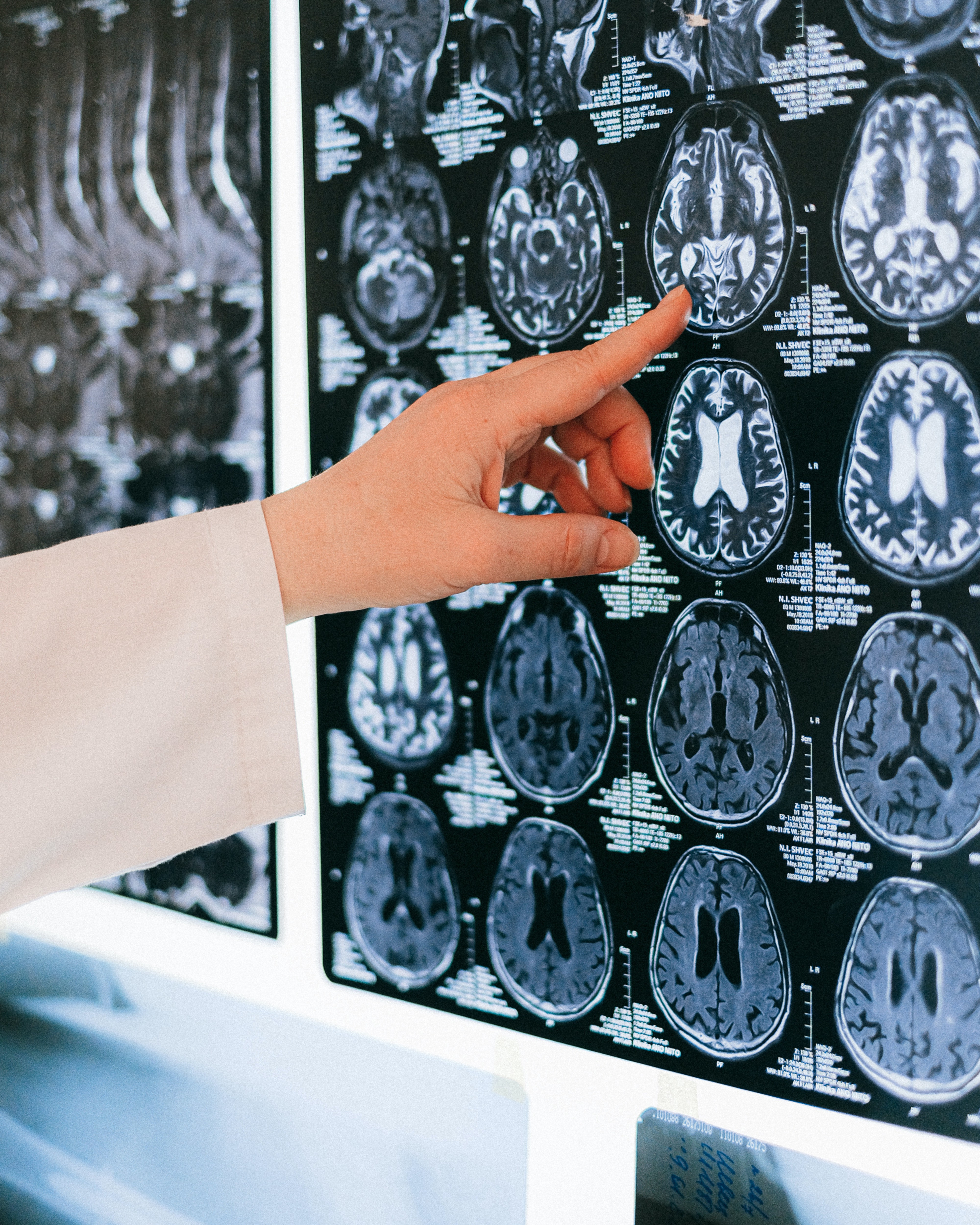 Several brain scans being reviewed by a doctor.