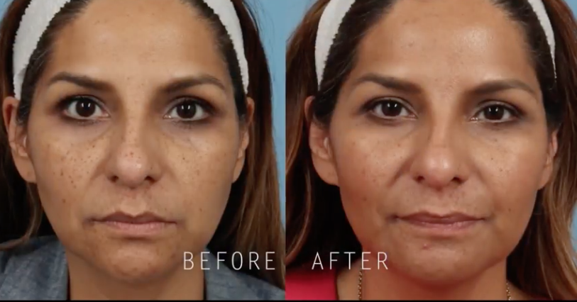 Picosure Laser Skin Revitalization Reverse Aging Breakthrough