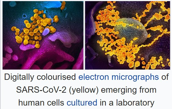 Image of colorized SARS-CoV-2 mingled with yellow colorized human cells.