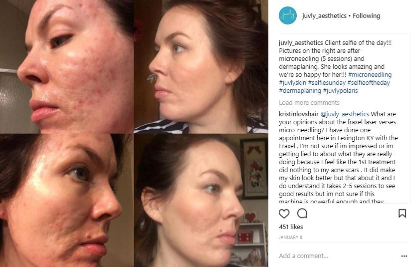 Microneedling: Your All-Around Beauty Secret - Juvly