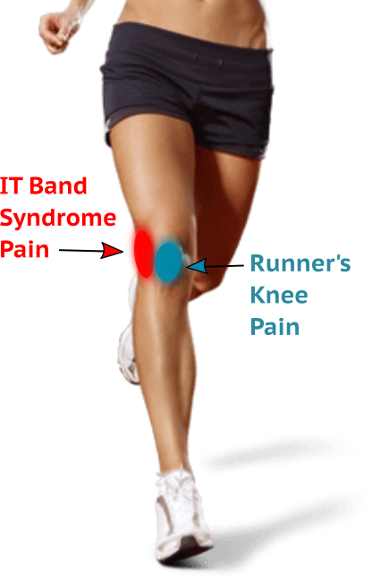 IT Band Syndrome and Runner's Knee