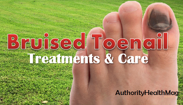 Black Spot Under Toenail — Causes As Well As Therapy Alternatives To ...