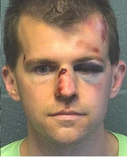 Mug shot of white man in his 30s with severe injuries to nose, eye, and forehead
